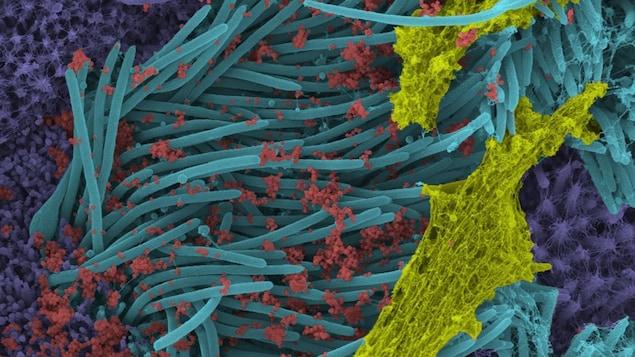 Cette image montre les virions (rouge) du SRAS-CoV-2 produits par l'épithélium des voies respiratoires humaines.