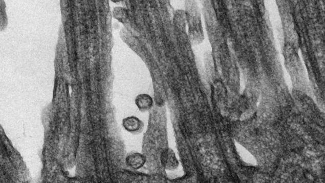 Vue microscopique du SRAS-CoV-2 responsable de la COVID-19 accroché aux cellules épithéliales respiratoires humaines.
