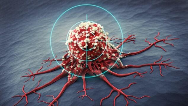 Illustration montrant une tumeur cancéreuse.