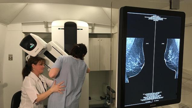 Une femme est en train de passer une mammographie.