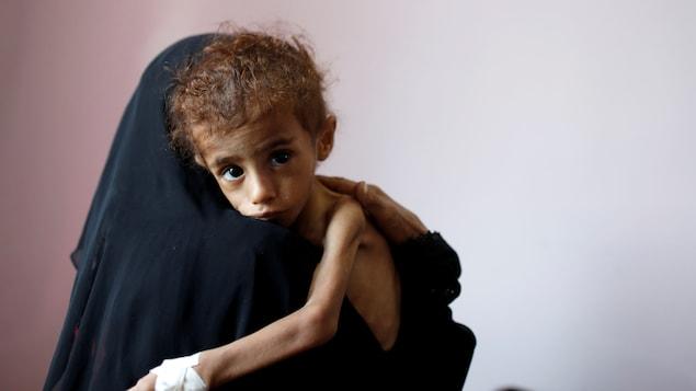 Plus de 5 millions d'enfants menacés par la famille au Yémen selon l'organisme Save the children