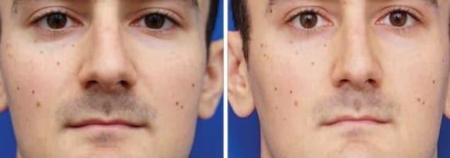Des photos prises à 30 et 150 centimètres du visage.