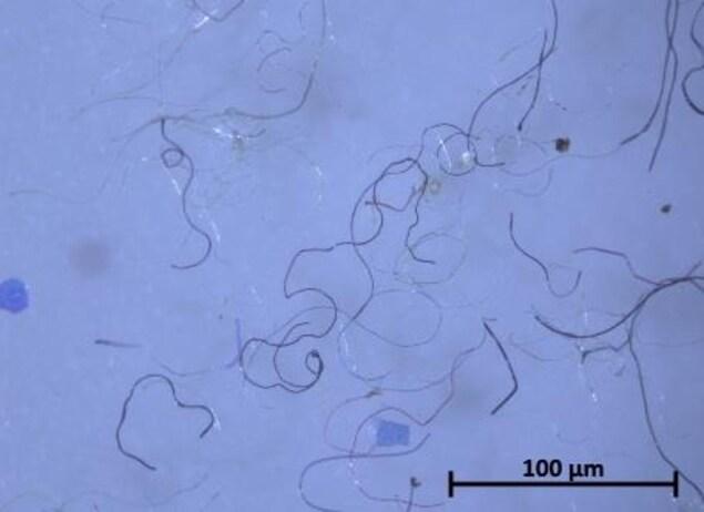 Des microplastiques vus sous la loupe d'un microscope.