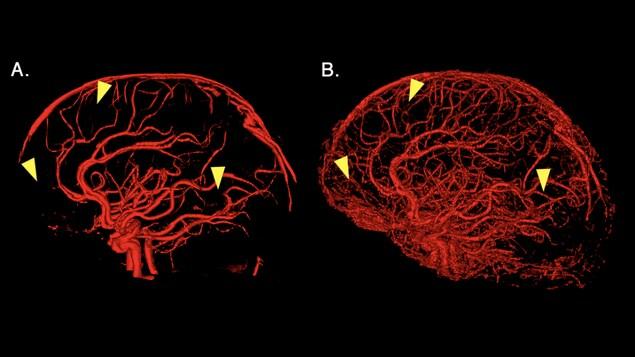 Un scan de cerveau.