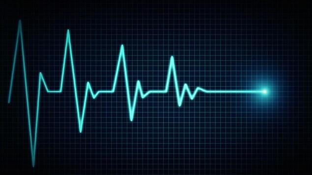 Une image représentant un électrocardiogramme qui se termine en une ligne droite représentant la mort.