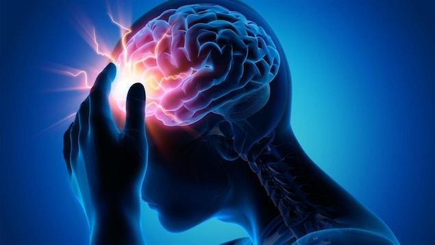On voit un cerveau humain affecté par une commotion.