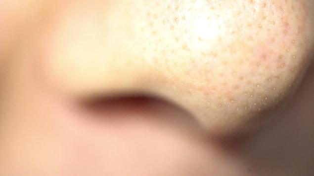 Une photo d'un nez prise de très près.