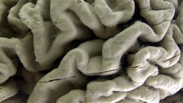 Portion du cerveau d'une personne ayant souffert de la maladie d'Alzheimer.