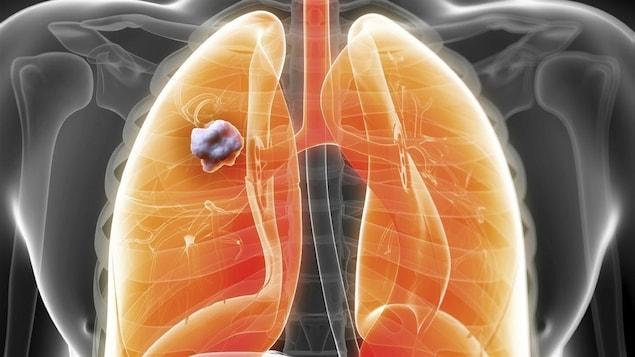 Modélisation par ordinateur de poumons atteints du cancer.