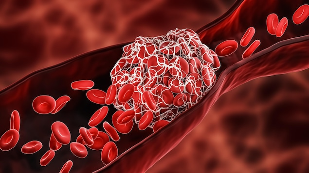 Illustration d'une thromboses.