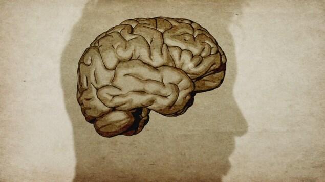 Image de cerveau dans la silhouette d'une tête d'homme.