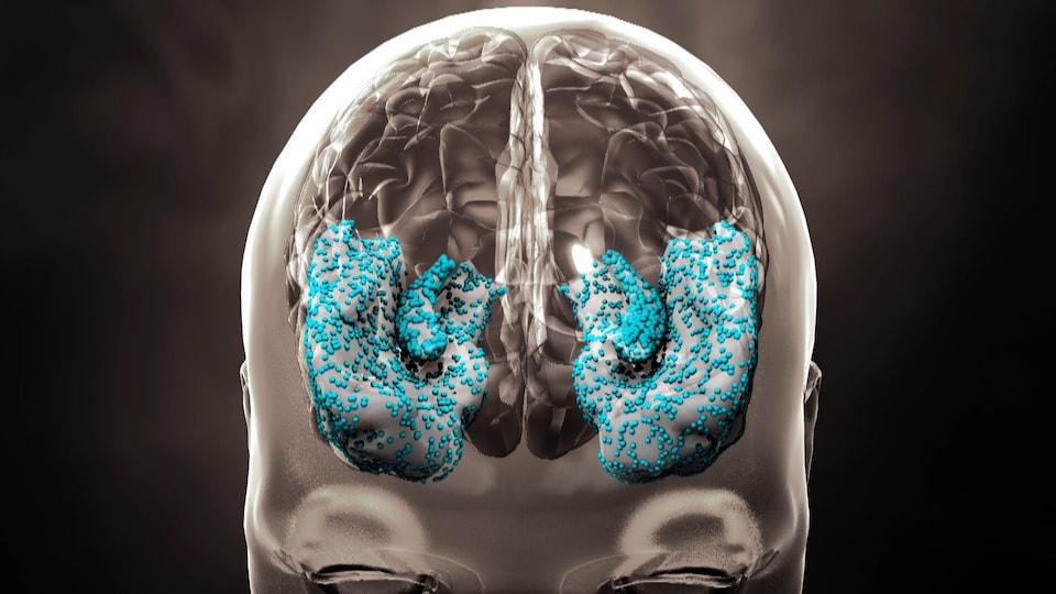 Représentation du cerveau montrant la progression de la maladie d'Alzheimer