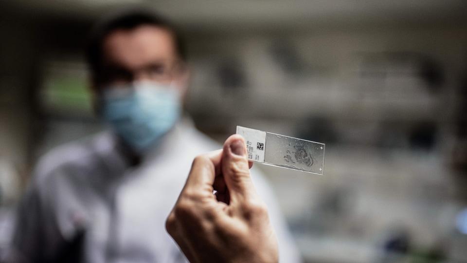 Un scientifique travaille sur l'analyse d'une tumeur.