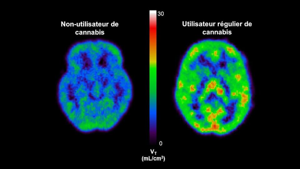 Image représentant deux cerveaux vus par imagerie médicale. L'un est un cerveau de non-utilisateur de cannabis, l'autre d'un utilisateur régulier du cannabis.