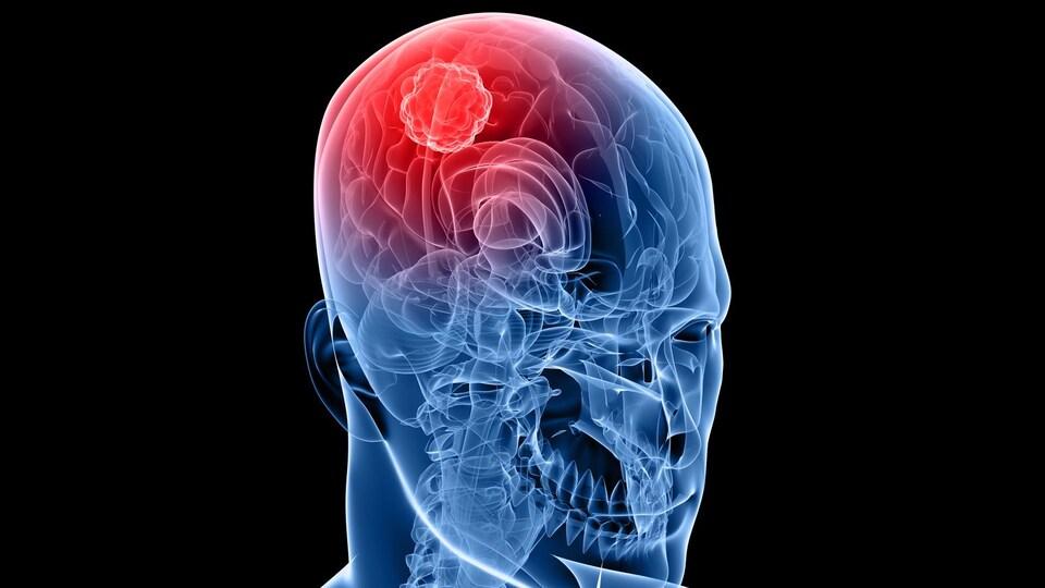 Illustration montrant une tumeur dans un cerveau humain.