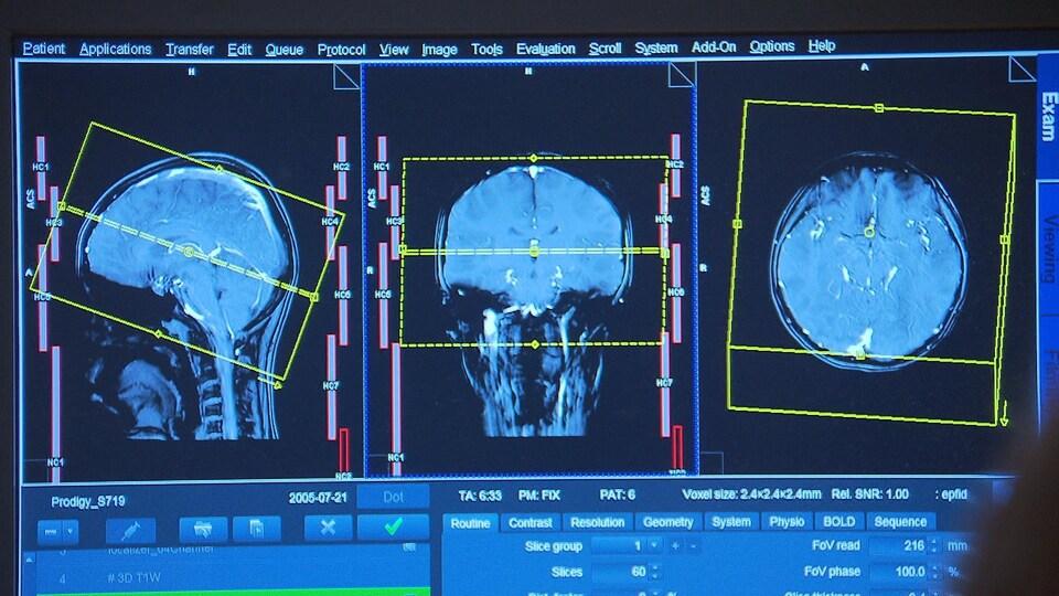 L'analyse d'un cerveau à l'aide d'un appareil de résonance magnétique.