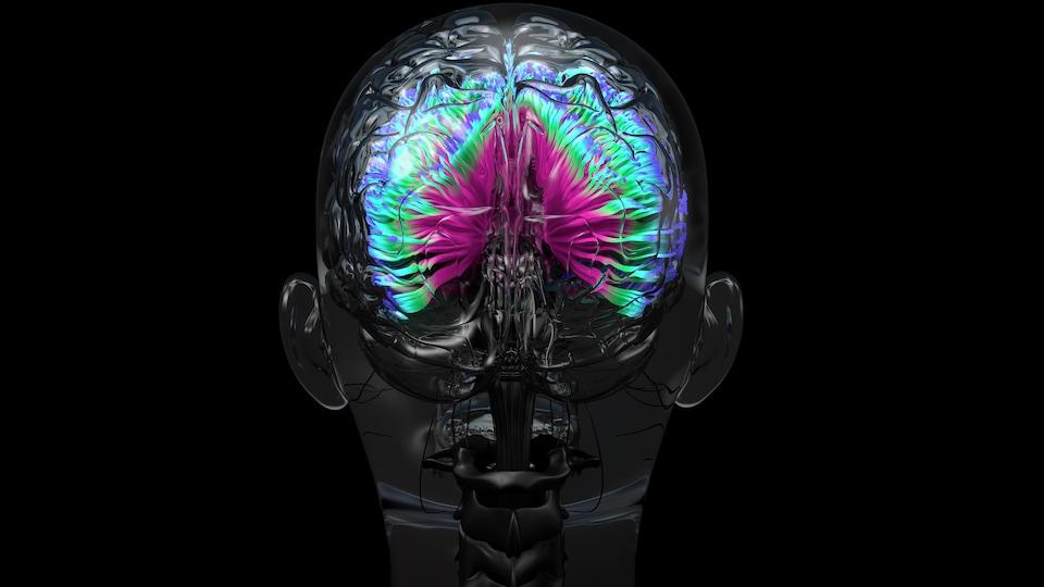 IRM colorée d'un cerveau humain.