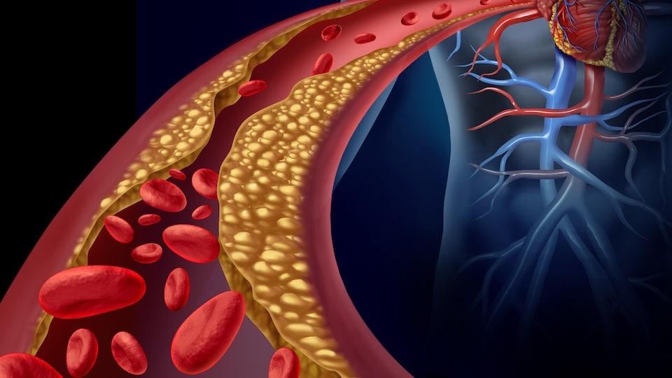 Illustration des ravages du mauvais cholestérol dans une artère.