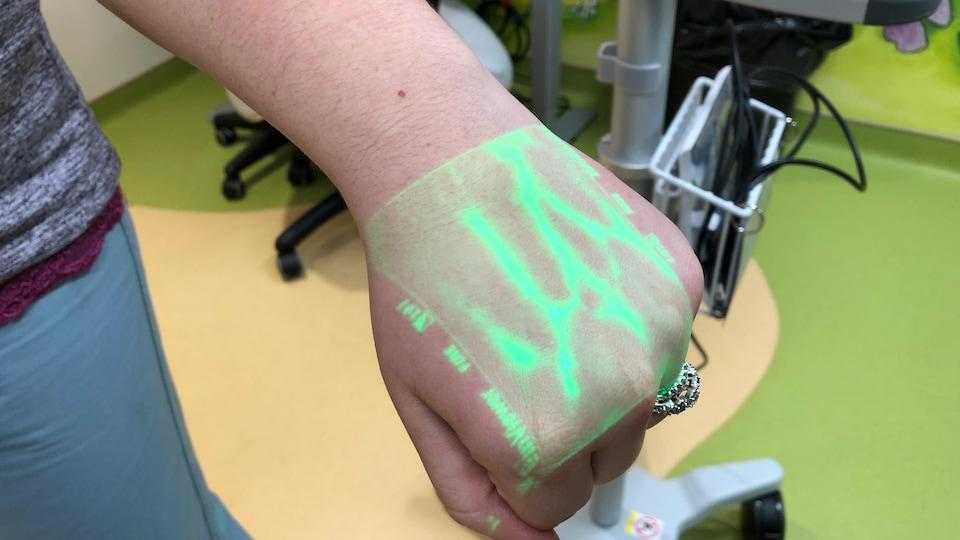 Des veines d'une main sous un éclairage vert.
