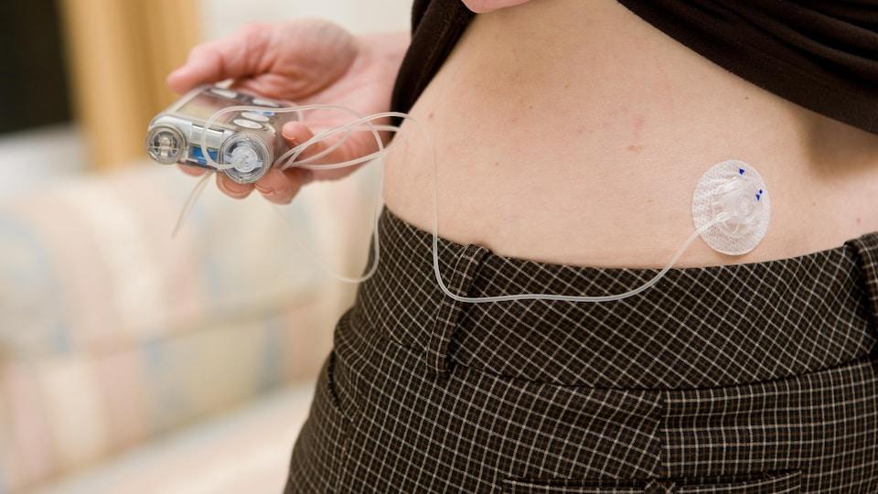 Une personne dont on ne peut voir que la taille vérifie l'écran de sa pompe à insuline.