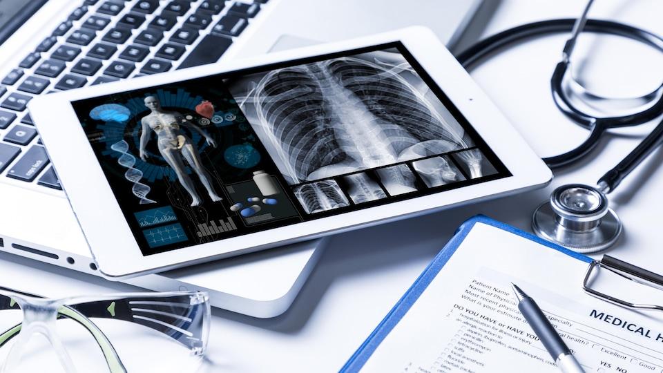 Une tablette électronique affichant une représentation du corps humain.