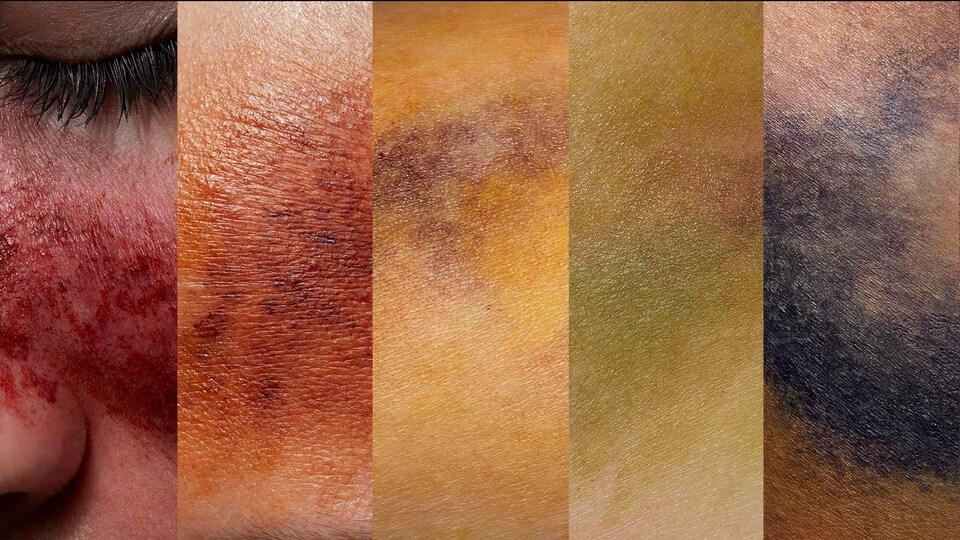 Un arc-en-ciel composé de différentes images de peau couverte d'ecchymoses de différentes couleurs.