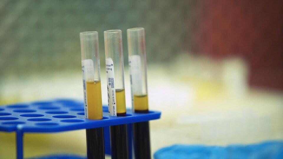Des éprouvettes contenant du plasma sanguin.