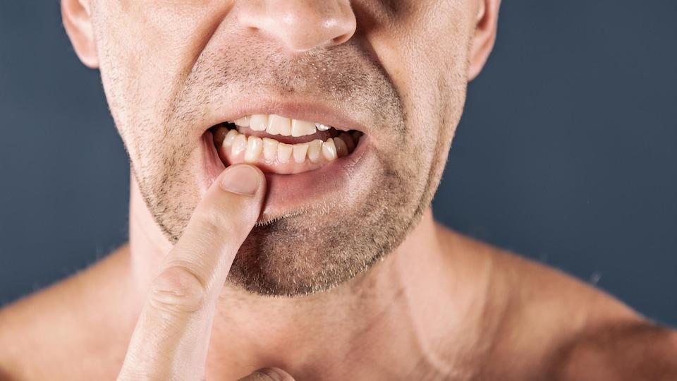 Un homme montre ses dents.