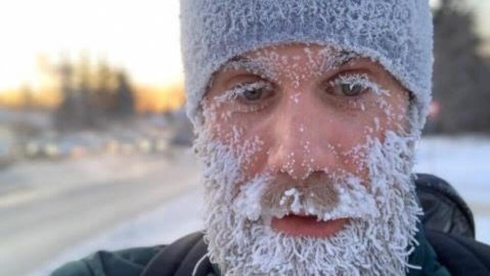 Portrait de Gibby Davis dehors. Il est recouvert de givre.