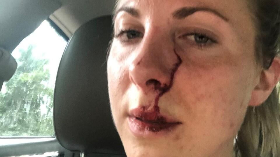 Erin McKenzie avec une importante griffure à côté du nez.