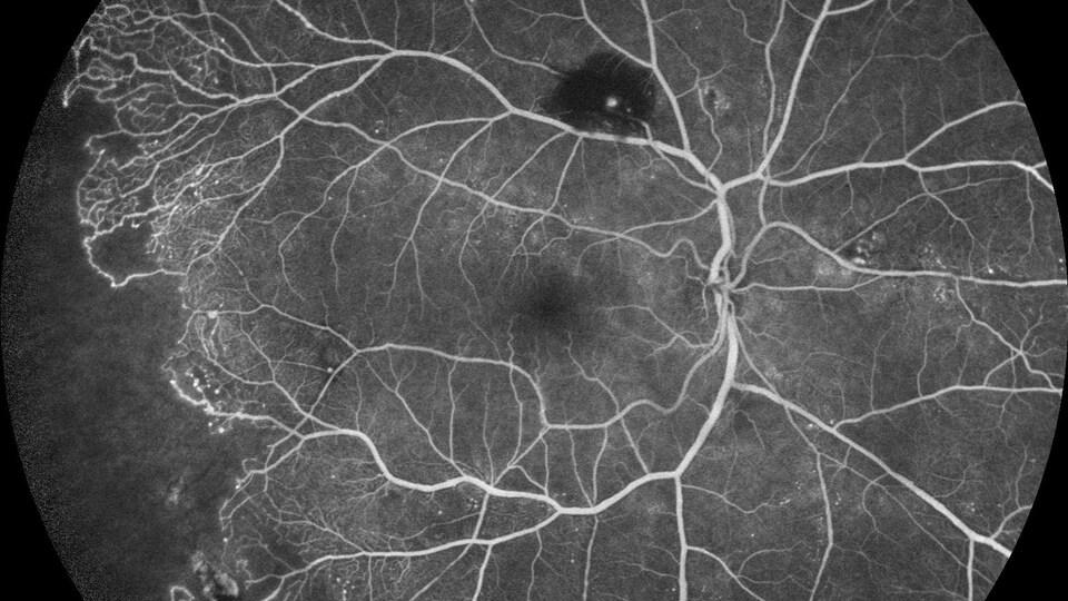 Le fond de l'oeil est représenté avec ses fins vaisseaux sanguins.