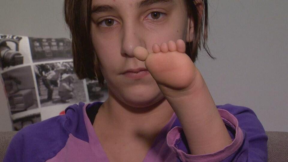 Une jeune fille montre sa main malformée qui ressemble à un moignon avec cinq doigts.