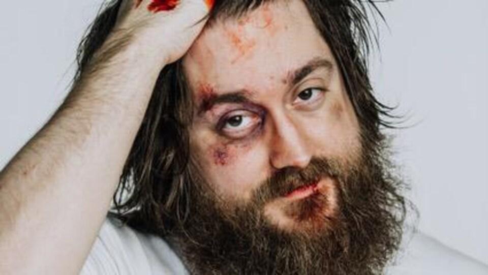 joey robin haché avec le visage battu et les mains pleines de sang