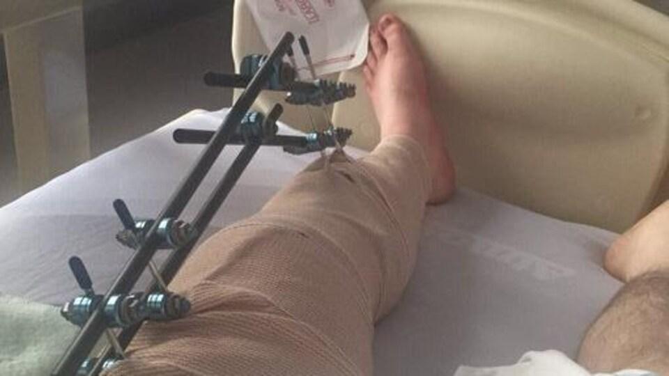 Une jambe fracturée allongée sur un lit d'hôpital.