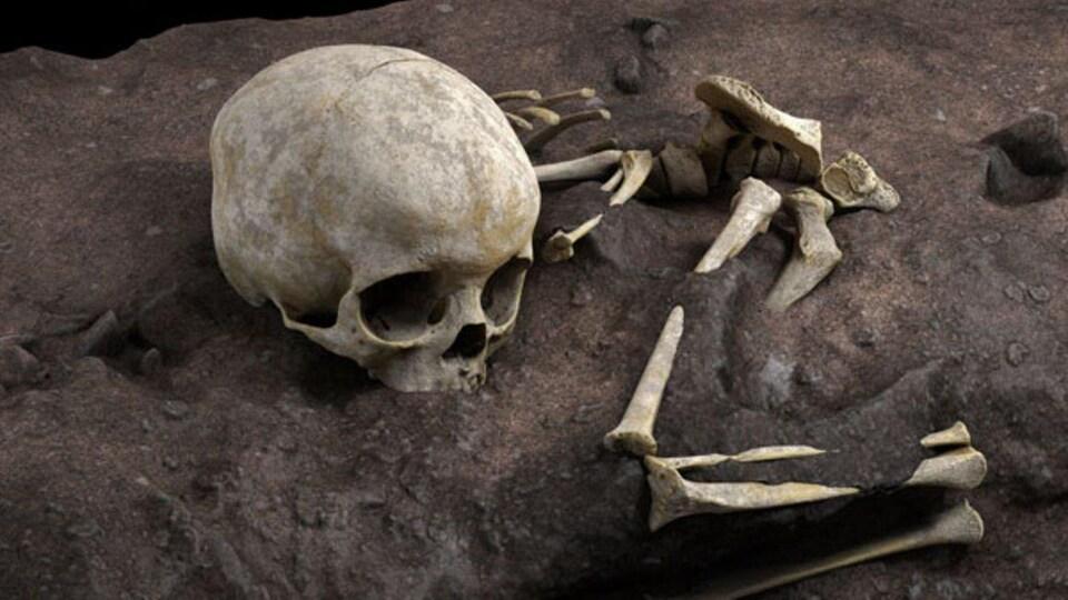Des ossements humains.