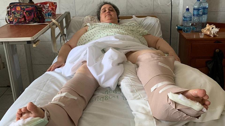 La femme est couchée sur un lit, les pieds bandés des genoux aux orteils.