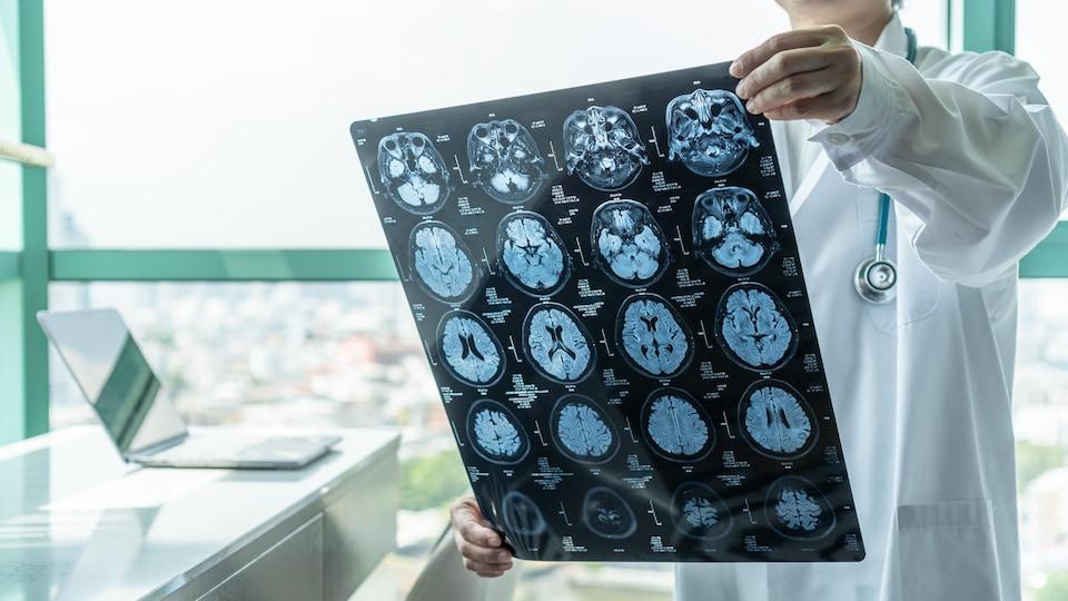 Un médecin analysant une radiographie d'un cerveau.