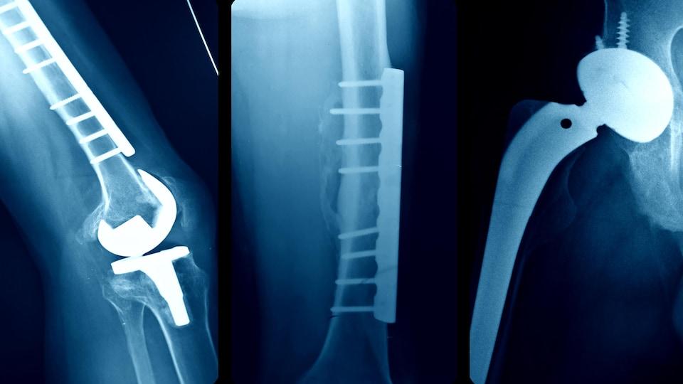 Des radiographies de dispositifs médicaux implantés chez des patients.
