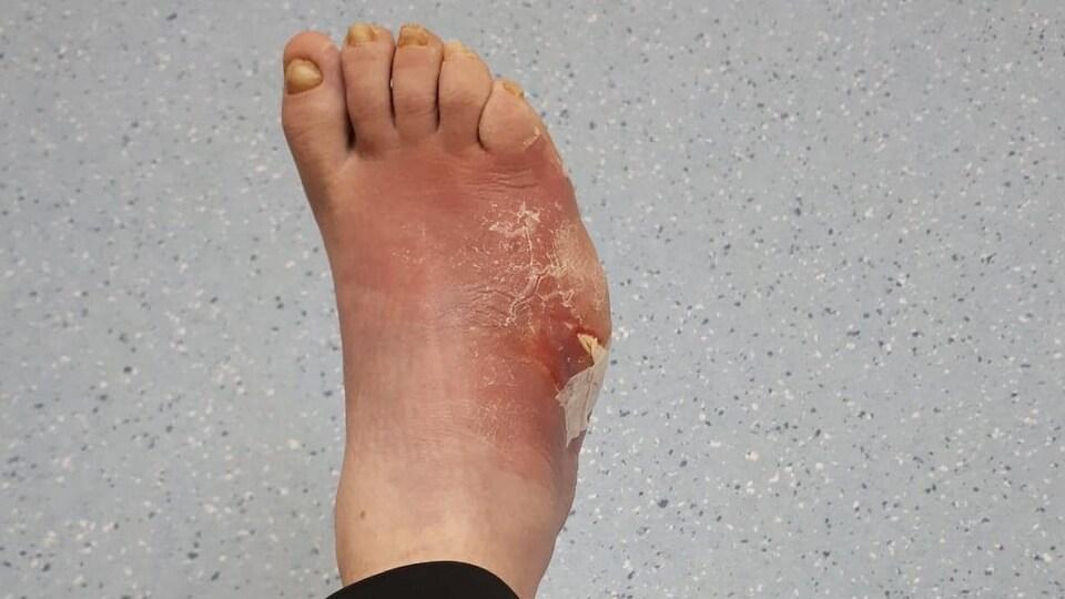 Une photo montre le pied enflé et violacé de Samantha Rideout