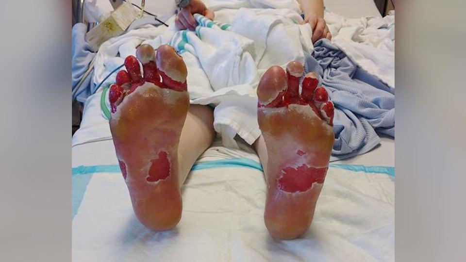 Catherine Jalbert souffre d'importantes brûlures aux pieds.