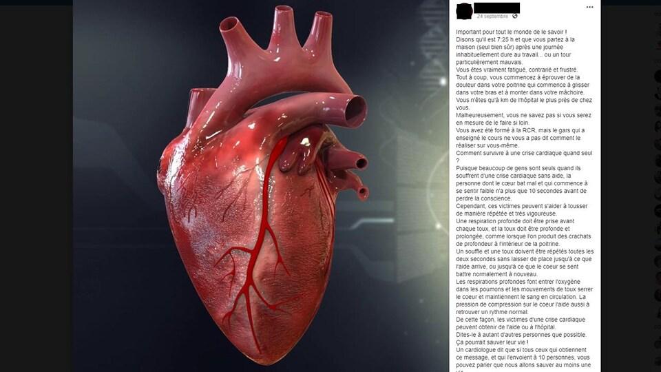 On voit une publication Facebook sur les conseils à suivre en cas de crise cardiaque.