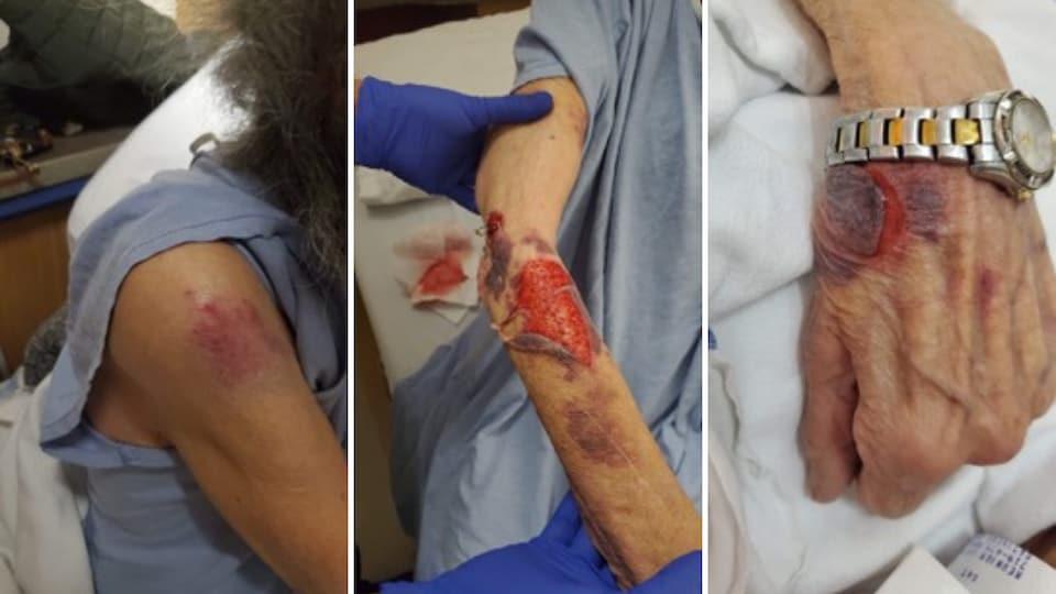Collage photo de trois images montrant les blessures de la mère de Nathalie.