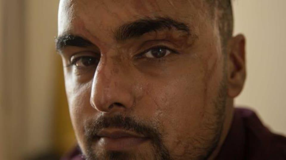 Le londonien Samir Hussain doit vivre avec les séquelles d'une attaque à l'acide.