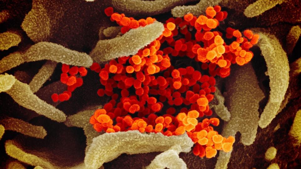 Le virus Sars-CoV-2 apparaît en orange alors qu'il colonise la surface de cellules (en vert).