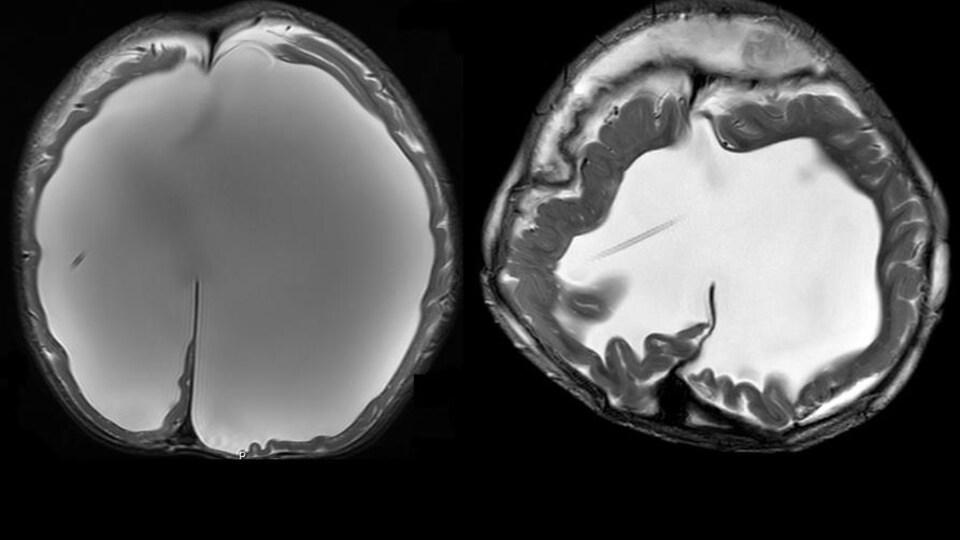 À gauche, un examen de tomodensitométrie du crâne de l'enfant avant l'opération. L'eau, représentée en gris pâle, occupe presque tout l'espace à l'intérieur du crâne. À droite, le cerveau après l'opération. Le volume d'eau a nettement diminué.