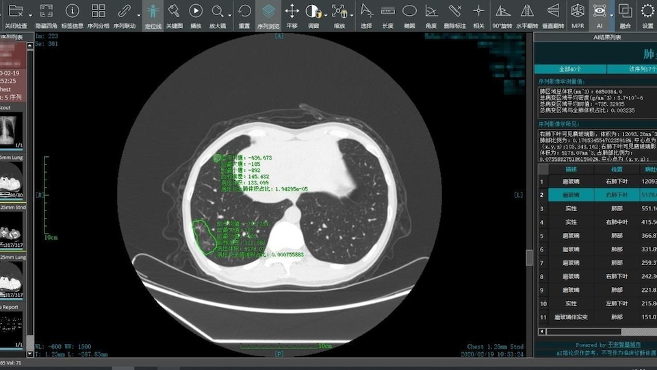 Capture d'écran d'un logiciel chinois de détection d'infections.