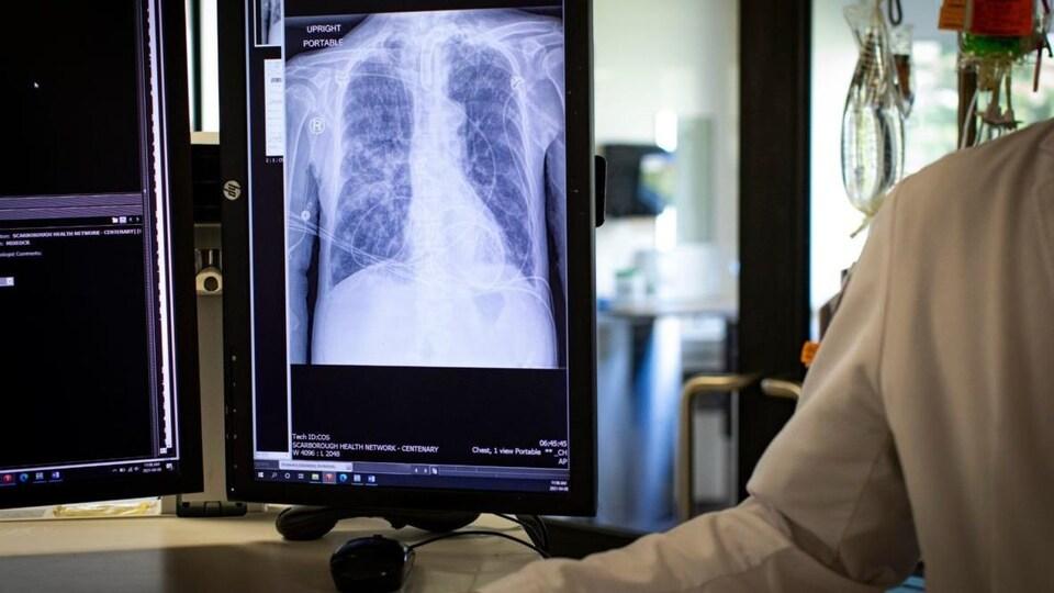 Une images des poumons d'un patient