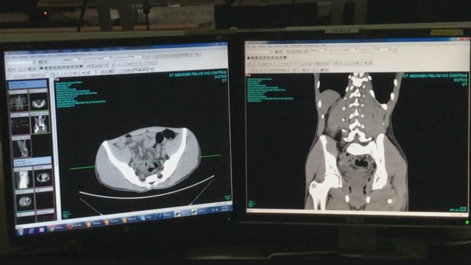 Les imageries médicales sont reçues à travers un serveur sécurisé.