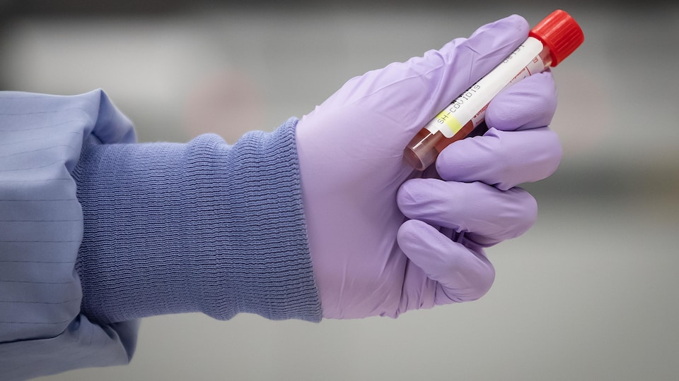 Un technicien de laboratoire manipule un spécimen à tester pour la COVID-19.