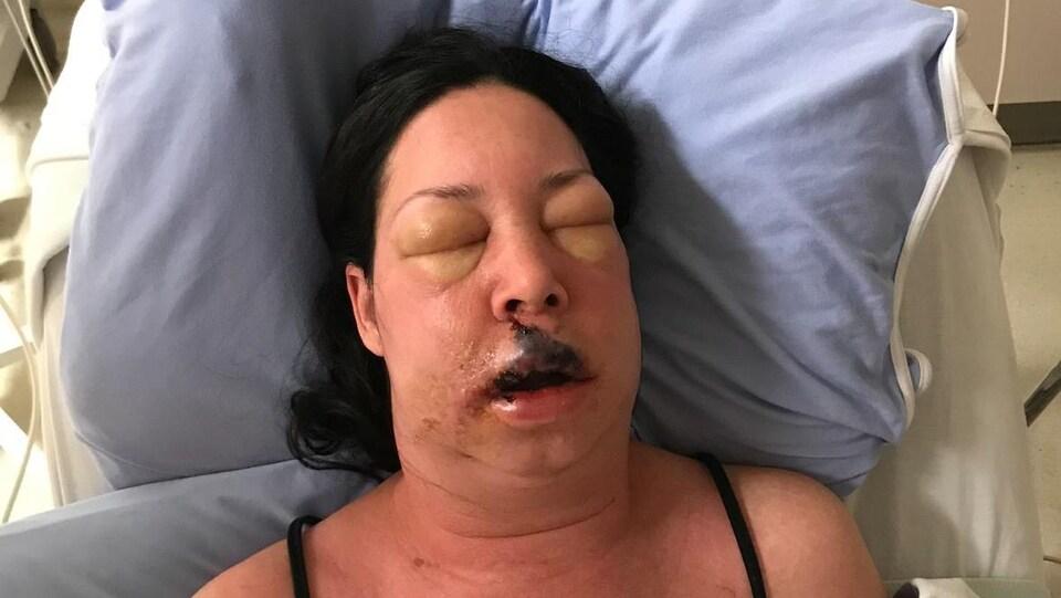 Anik Cormier au visage enflé en raison de la mangeuse de chaire.